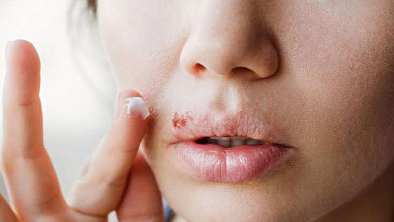 Penyebab-penyakit-herpes